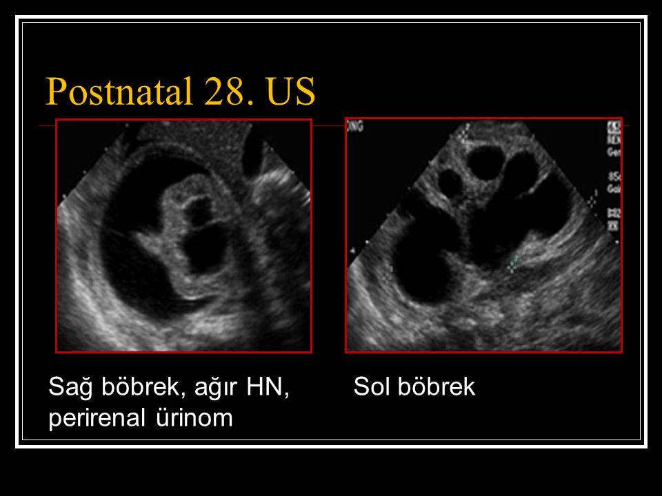 Postnatal 28. US Sağ böbrek, ağır HN, perirenal ürinom Sol böbrek