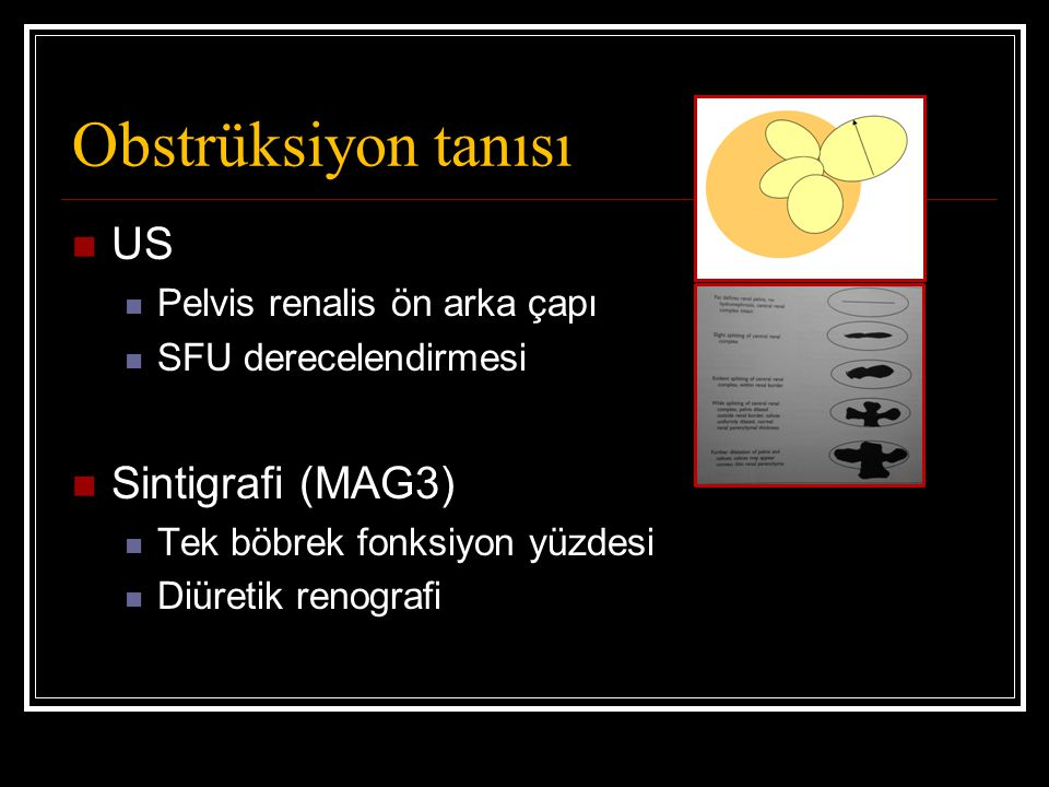 Obstrüksiyon tanısı US Sintigrafi (MAG3) Pelvis renalis ön arka çapı