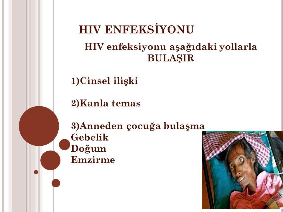 HIV enfeksiyonu aşağıdaki yollarla BULAŞIR