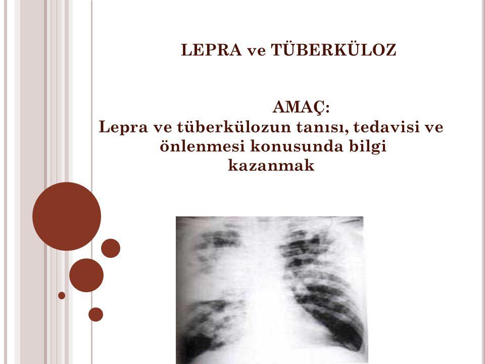 Lepra ve tüberkülozun tanısı, tedavisi ve önlenmesi konusunda bilgi