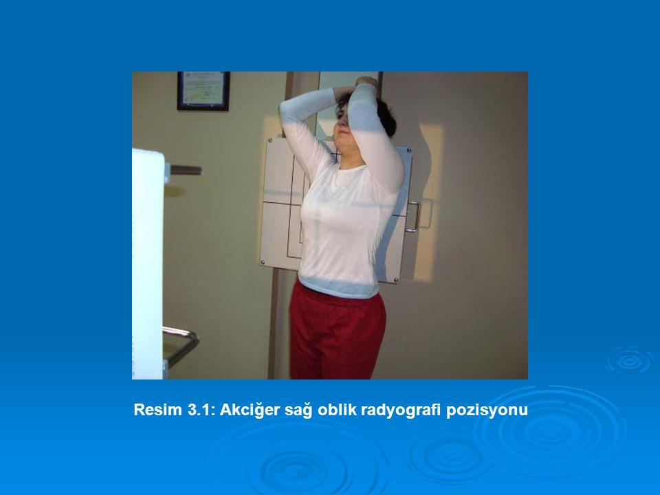 Resim 3.1: Akciğer sağ oblik radyografi pozisyonu