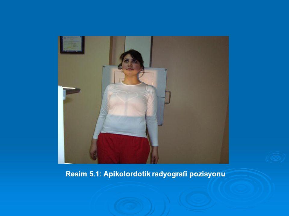 Resim 5.1: Apikolordotik radyografi pozisyonu