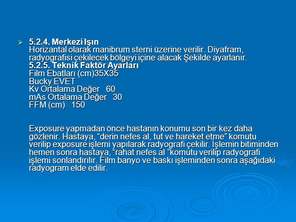 5.2.4. Merkezi Işın Horizantal olarak manibrum sterni üzerine verilir.