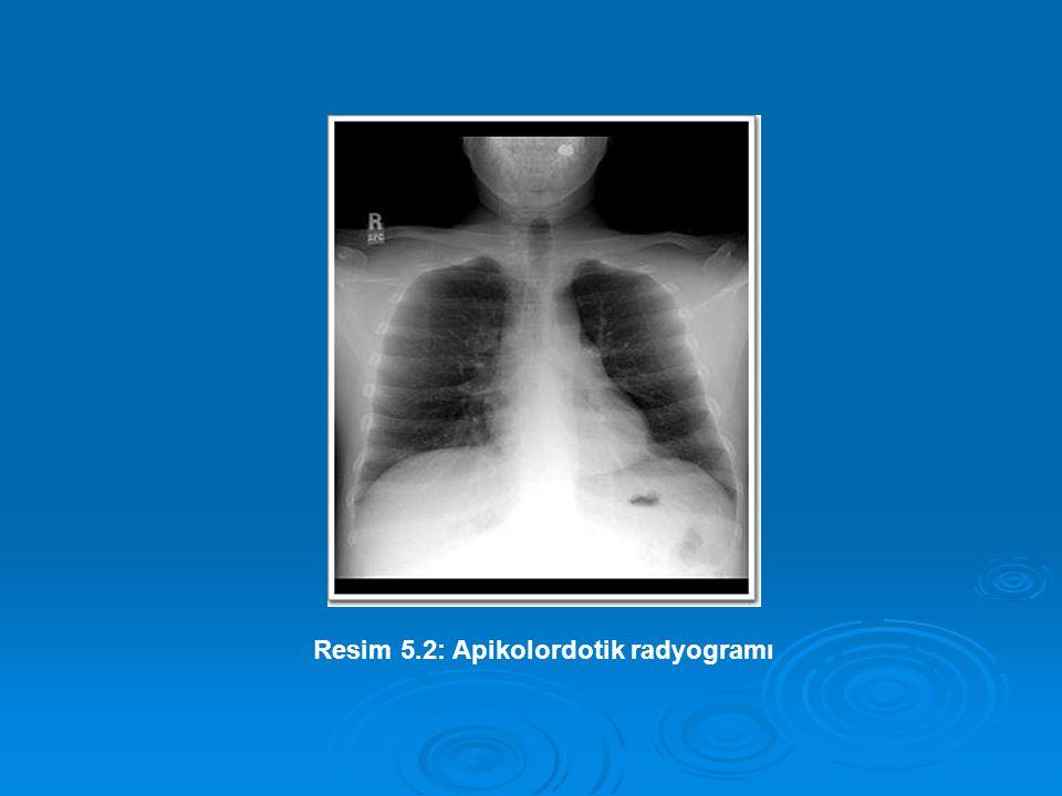 Resim 5.2: Apikolordotik radyogramı