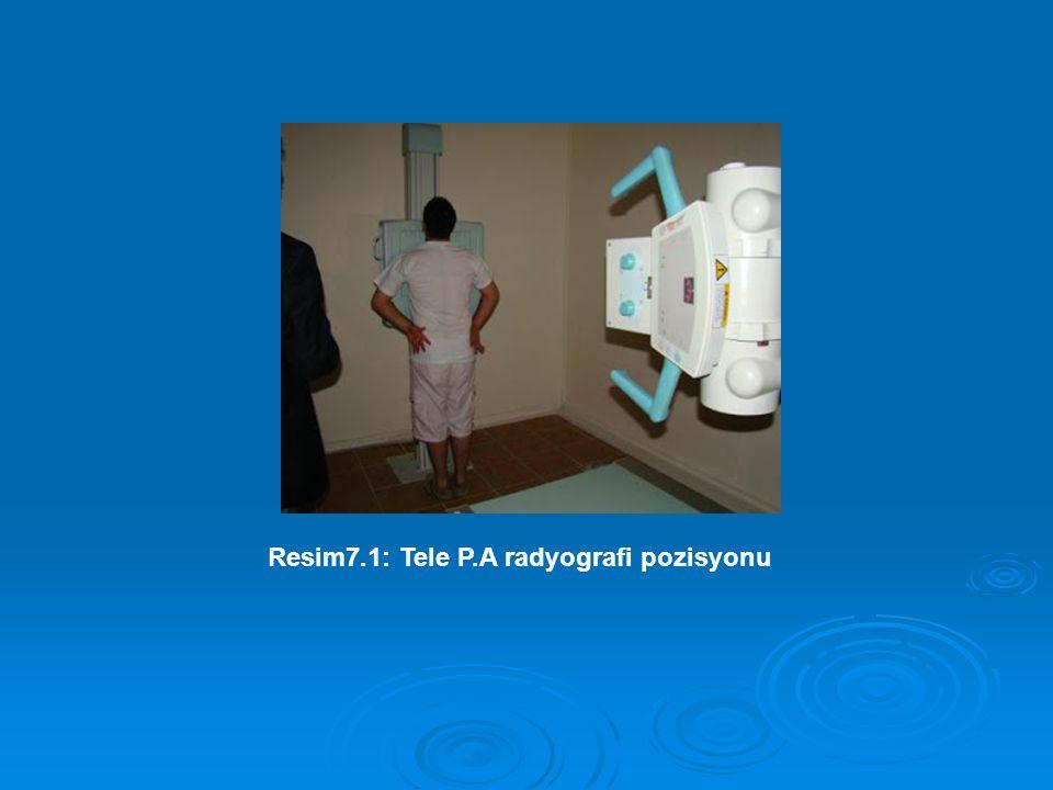 Resim7.1: Tele P.A radyografi pozisyonu