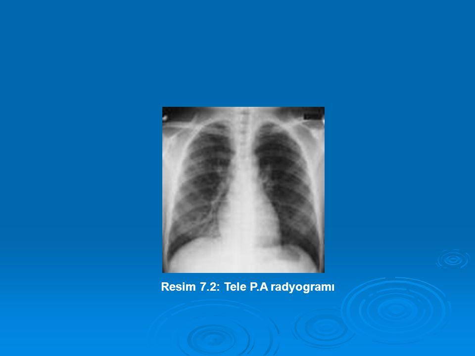 Resim 7.2: Tele P.A radyogramı