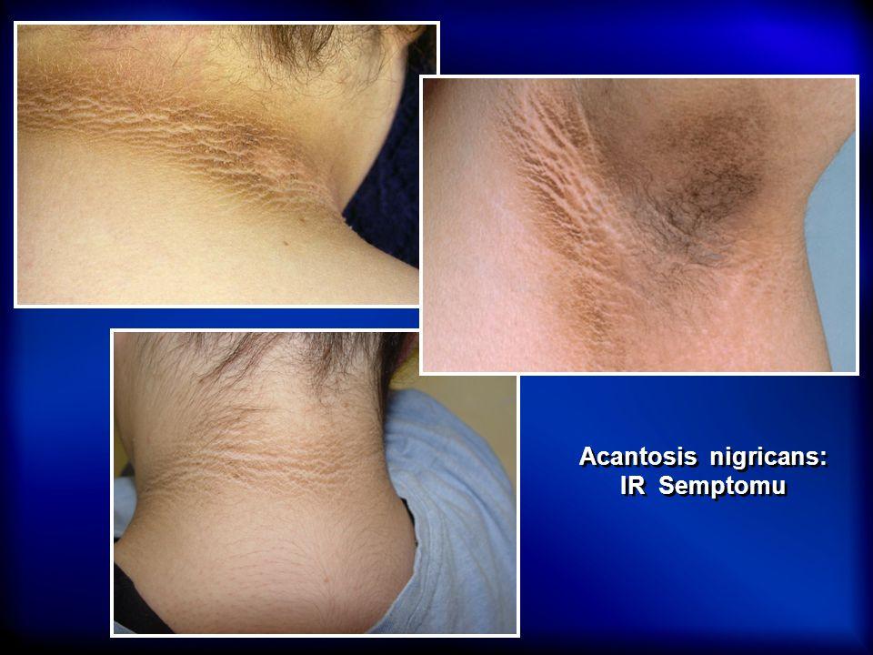 Acantosis nigricans: IR Semptomu