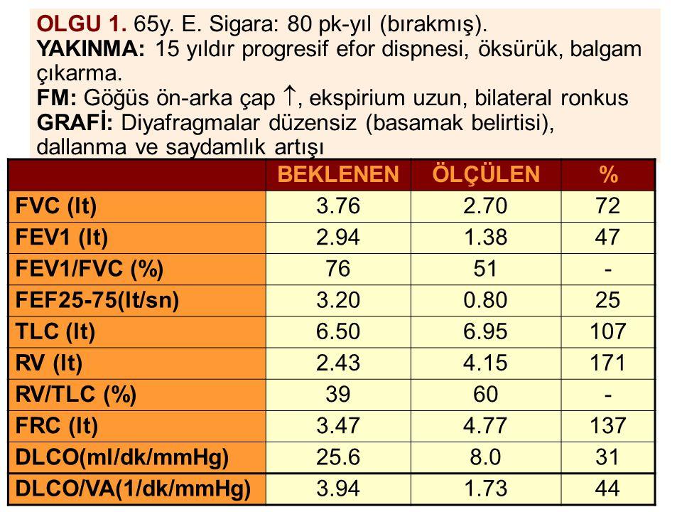 OLGU 1. 65y. E. Sigara: 80 pk-yıl (bırakmış).