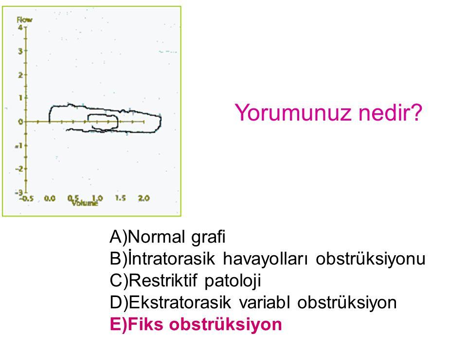 Yorumunuz nedir A)Normal grafi