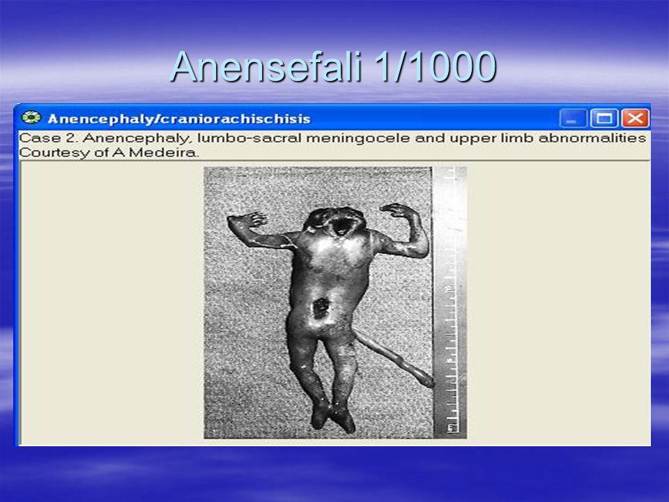 Anensefali 1/1000