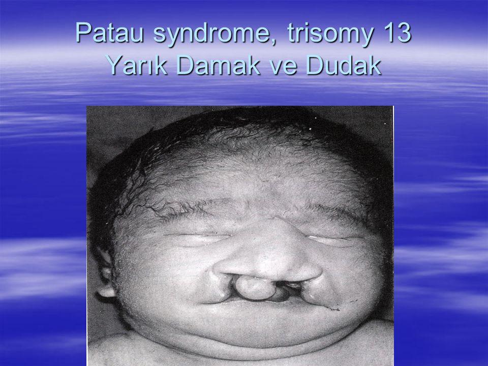 Patau syndrome, trisomy 13 Yarık Damak ve Dudak