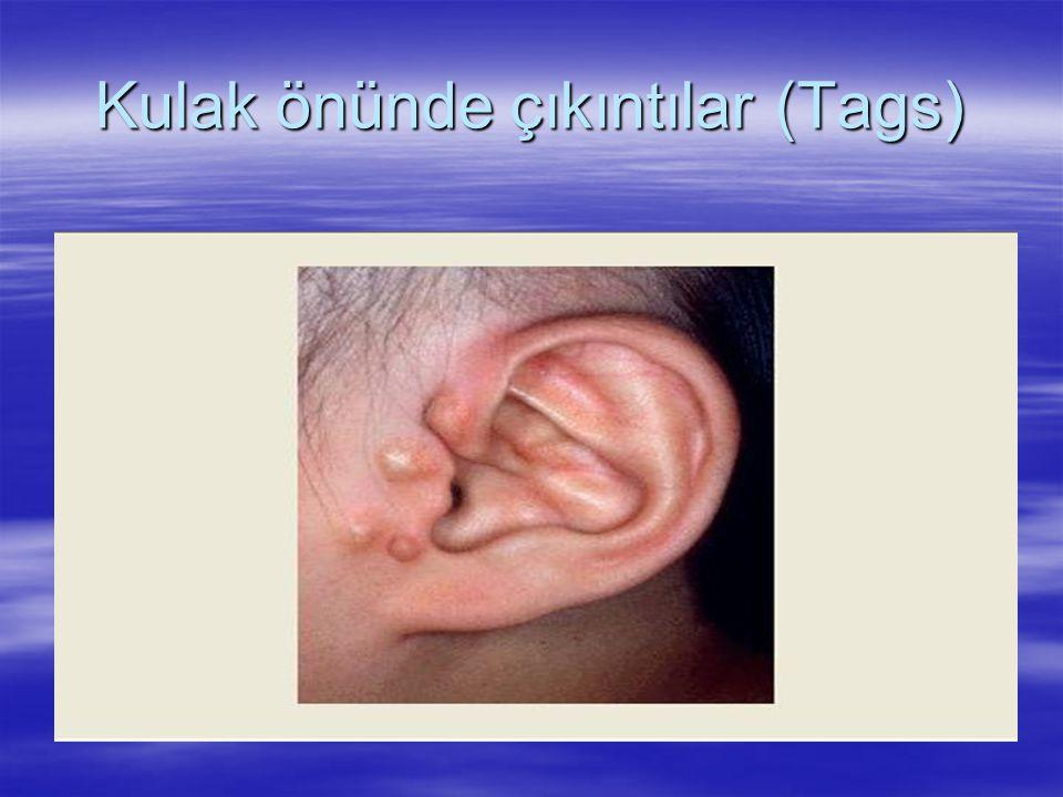 Kulak önünde çıkıntılar (Tags)