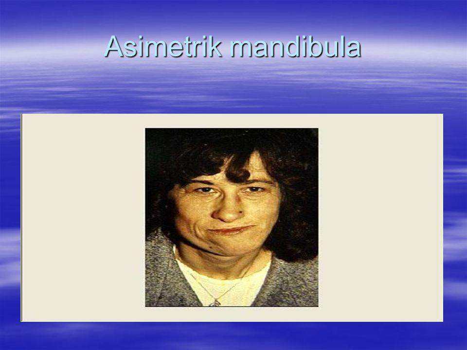 Asimetrik mandibula