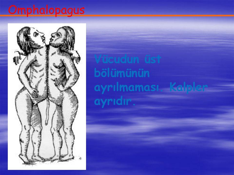 Omphalopagus Vücudun üst bölümünün ayrılmaması. Kalpler ayrıdır.