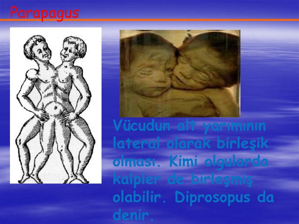 Parapagus Vücudun alt yarımının lateral olarak birleşik olması.