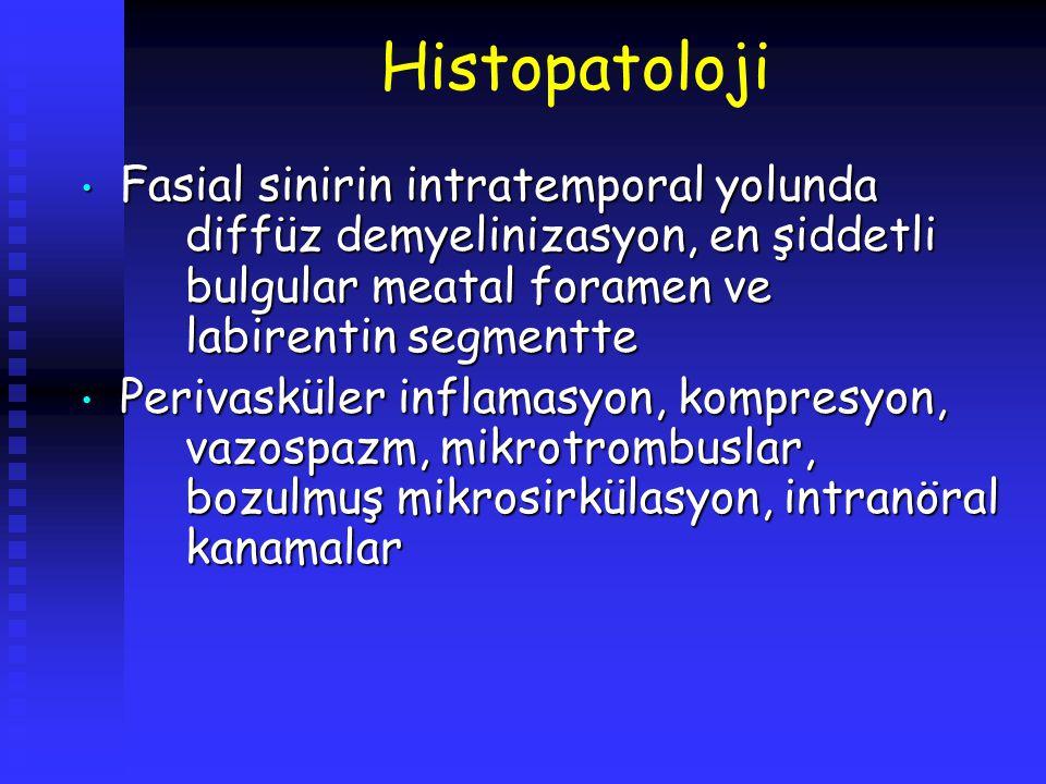 Histopatoloji Fasial sinirin intratemporal yolunda diffüz demyelinizasyon, en şiddetli bulgular meatal foramen ve labirentin segmentte.