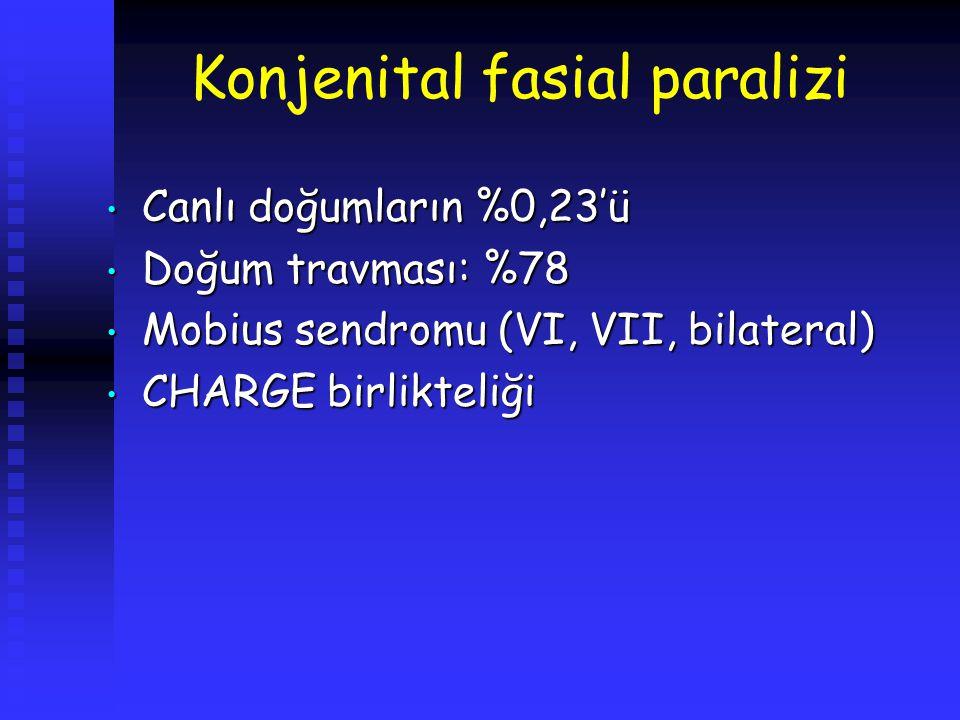 Konjenital fasial paralizi