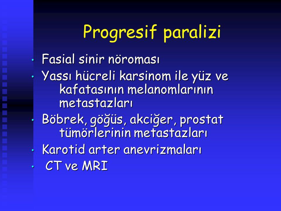 Progresif paralizi Fasial sinir nöroması