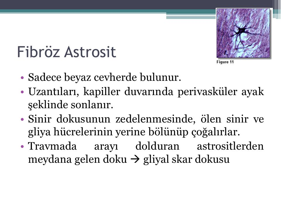 Fibröz Astrosit Sadece beyaz cevherde bulunur.