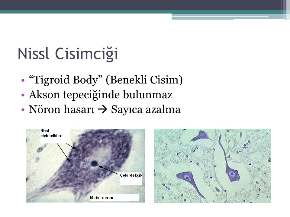 Nissl Cisimciği Tigroid Body (Benekli Cisim)
