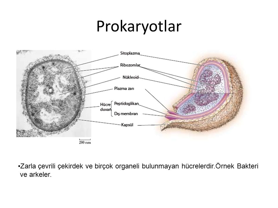 Prokaryotlar Zarla çevrili çekirdek ve birçok organeli bulunmayan hücrelerdir.Örnek Bakteri.