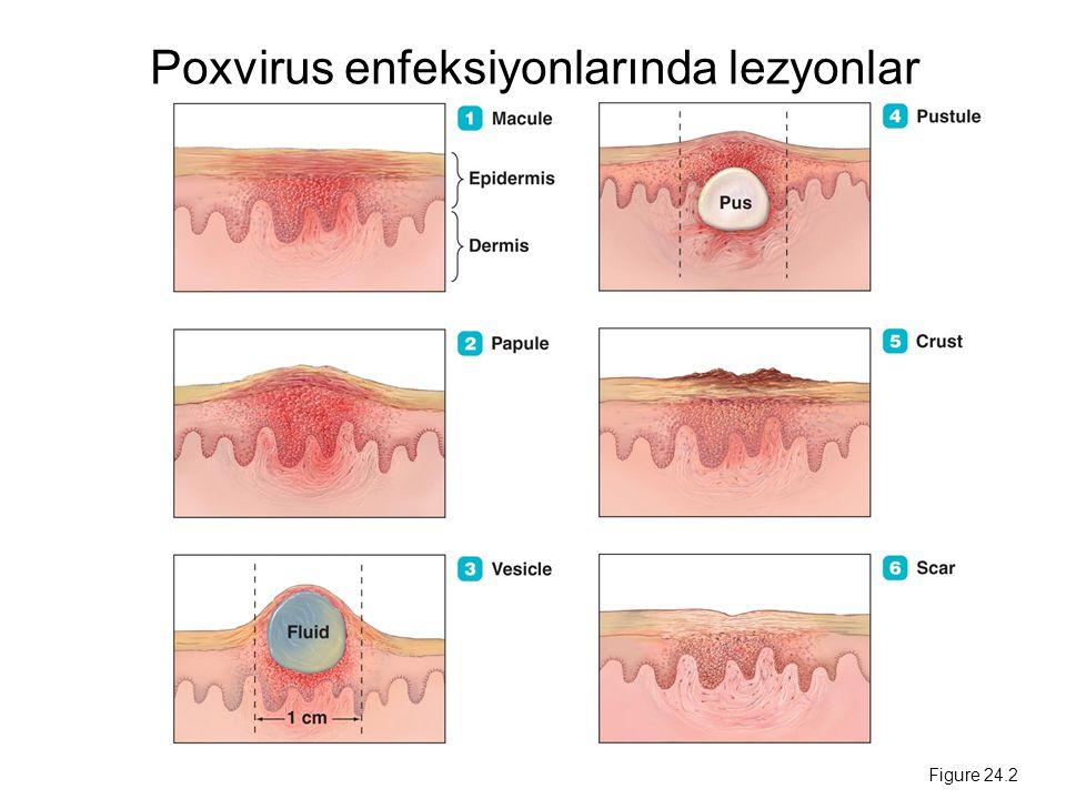 Poxvirus enfeksiyonlarında lezyonlar