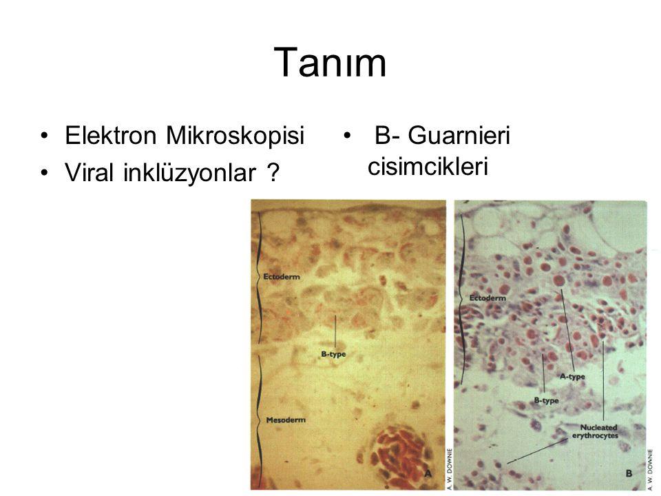 Tanım Elektron Mikroskopisi Viral inklüzyonlar