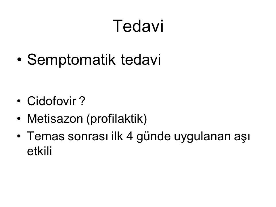 Tedavi Semptomatik tedavi Cidofovir Metisazon (profilaktik)