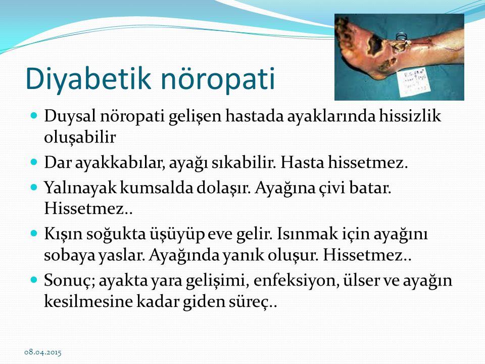Diyabetik nöropati Duysal nöropati gelişen hastada ayaklarında hissizlik oluşabilir. Dar ayakkabılar, ayağı sıkabilir. Hasta hissetmez.
