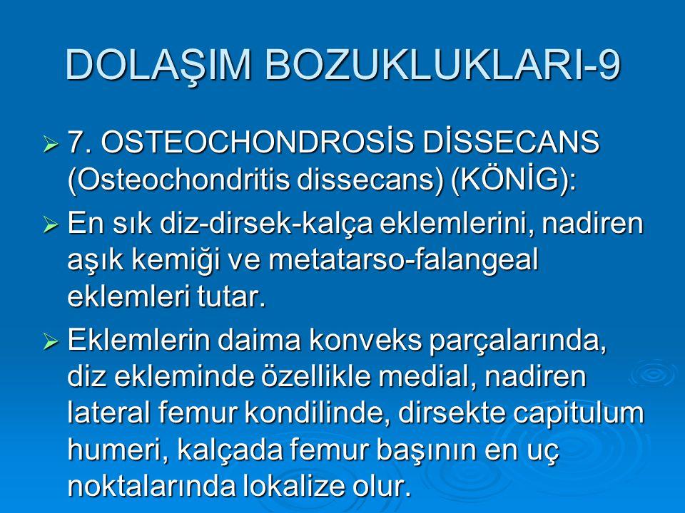 DOLAŞIM BOZUKLUKLARI-9