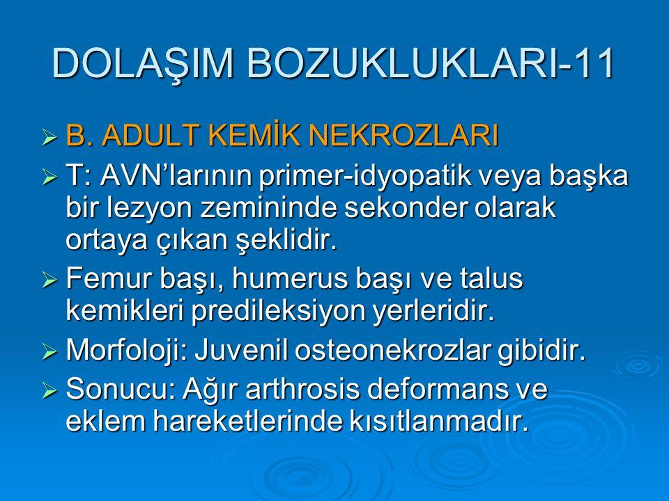 DOLAŞIM BOZUKLUKLARI-11