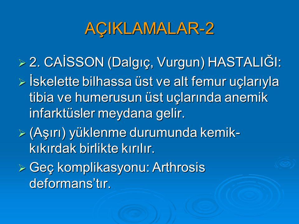 AÇIKLAMALAR-2 2. CAİSSON (Dalgıç, Vurgun) HASTALIĞI: