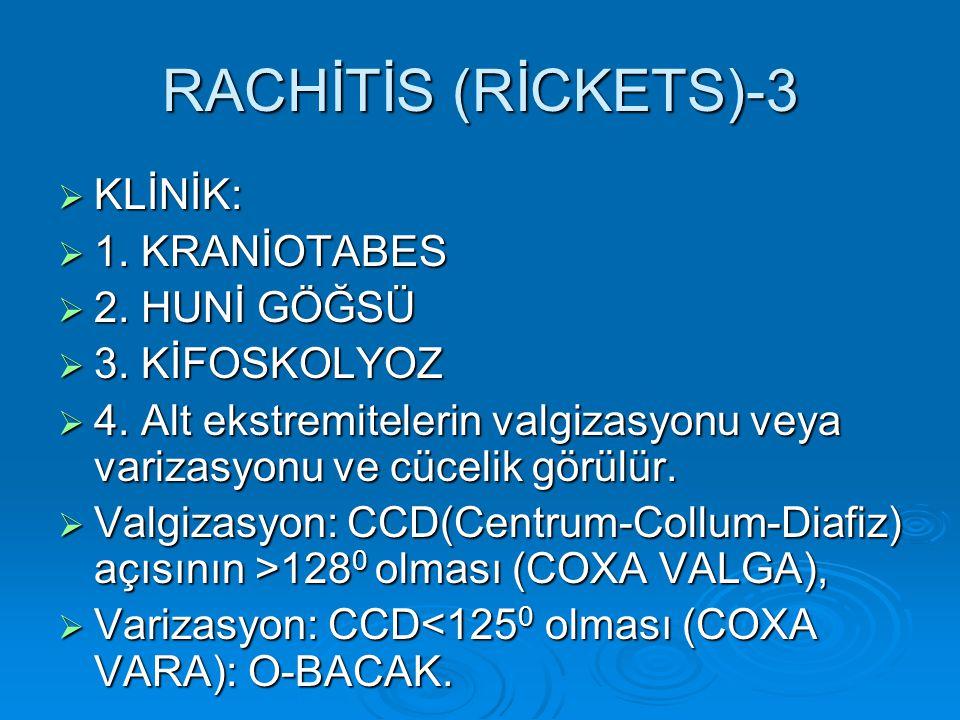 RACHİTİS (RİCKETS)-3 KLİNİK: 1. KRANİOTABES 2. HUNİ GÖĞSÜ