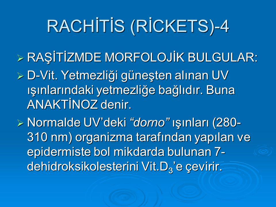 RACHİTİS (RİCKETS)-4 RAŞİTİZMDE MORFOLOJİK BULGULAR: