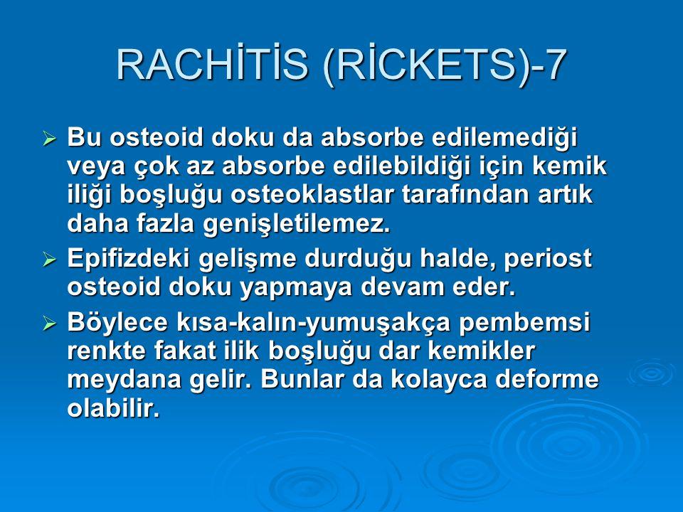 RACHİTİS (RİCKETS)-7