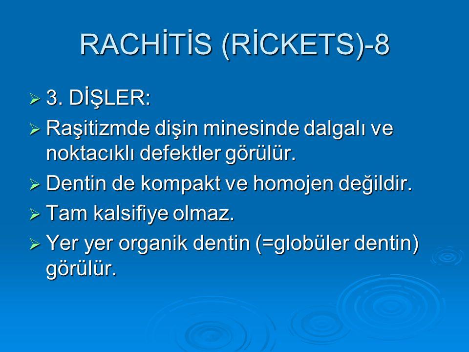RACHİTİS (RİCKETS)-8 3. DİŞLER: