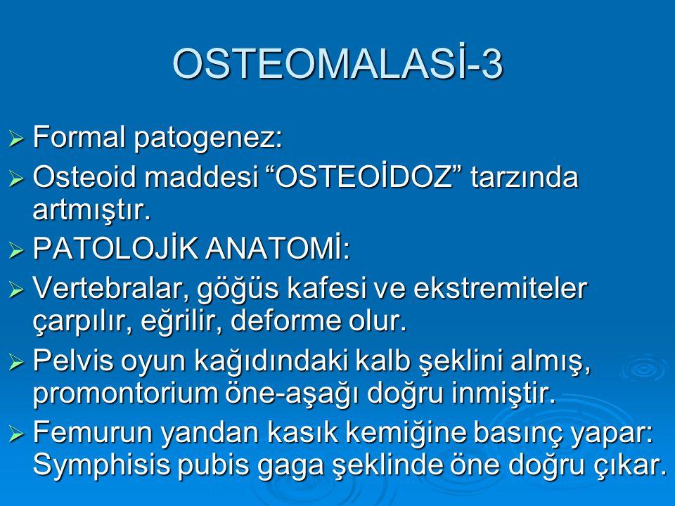 OSTEOMALASİ-3 Formal patogenez: