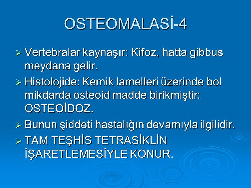 OSTEOMALASİ-4 Vertebralar kaynaşır: Kifoz, hatta gibbus meydana gelir.