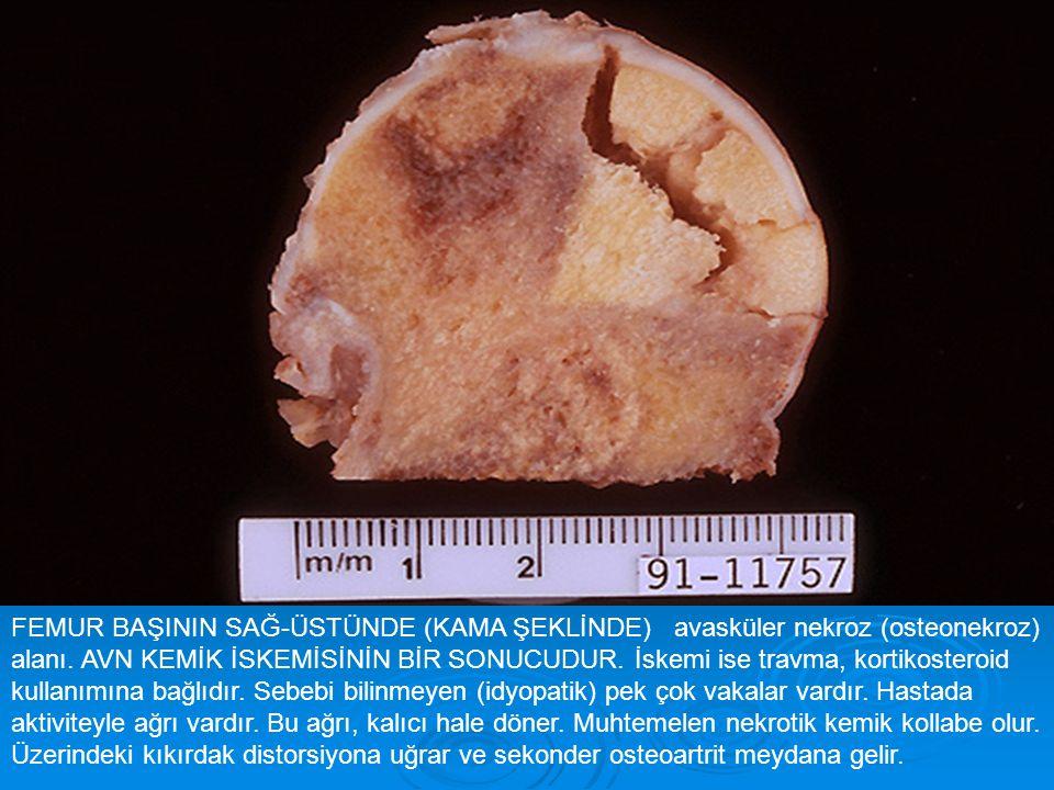 FEMUR BAŞININ SAĞ-ÜSTÜNDE (KAMA ŞEKLİNDE) avasküler nekroz (osteonekroz) alanı.