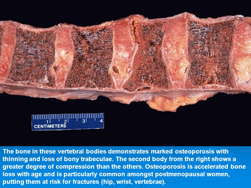 The bone in these vertebral bodies demonstrates marked osteoporosis with thinning and loss of bony trabeculae.