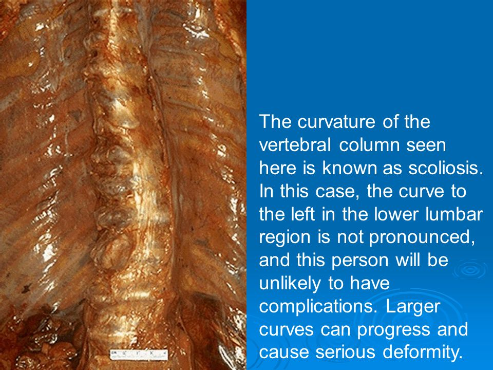 The curvature of the vertebral column seen here is known as scoliosis