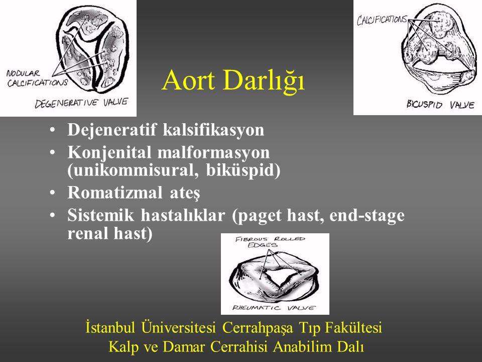 Aort Darlığı Dejeneratif kalsifikasyon