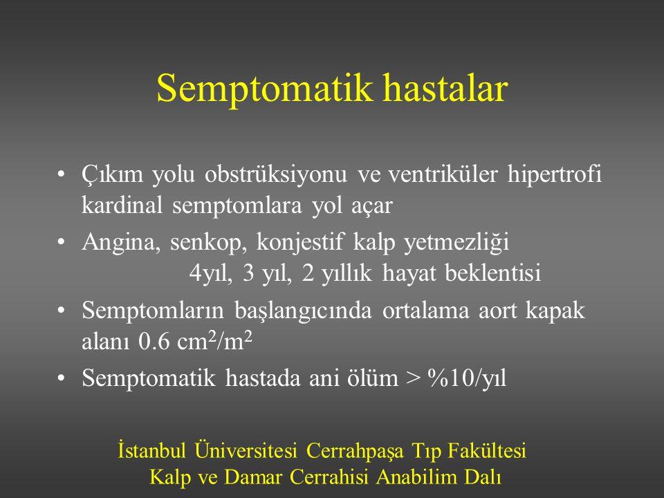 Semptomatik hastalar Çıkım yolu obstrüksiyonu ve ventriküler hipertrofi kardinal semptomlara yol açar.