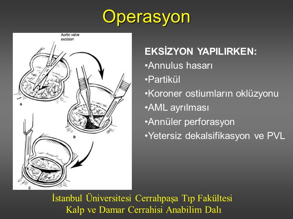 Operasyon EKSİZYON YAPILIRKEN: Annulus hasarı Partikül