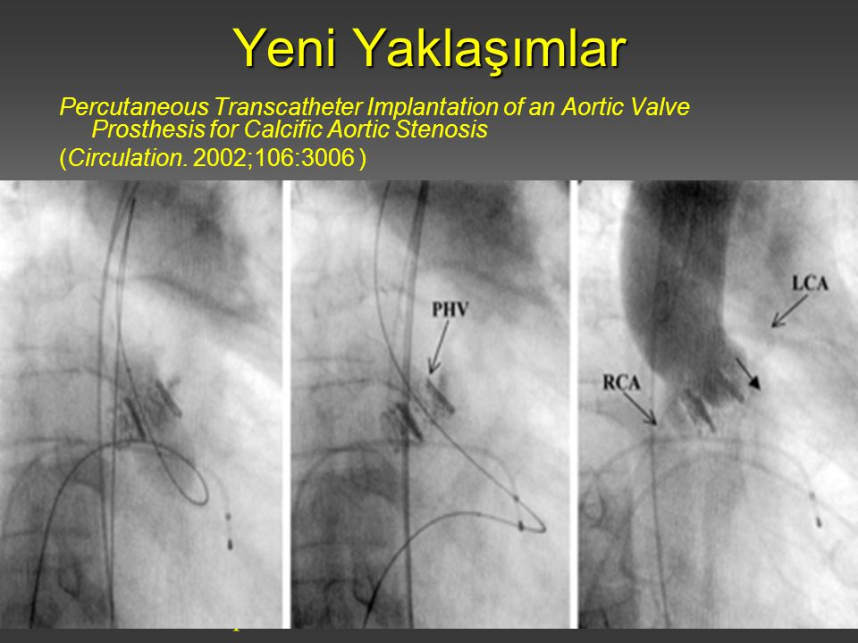 Yeni Yaklaşımlar Percutaneous Transcatheter Implantation of an Aortic Valve Prosthesis for Calcific Aortic Stenosis.