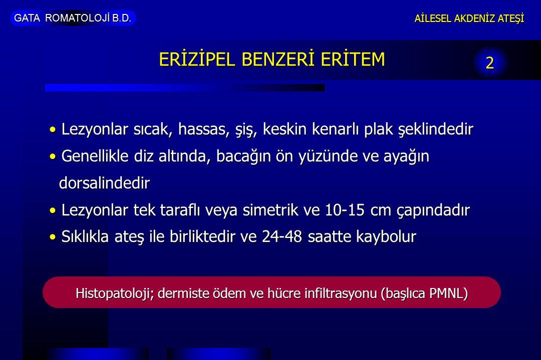 ERİZİPEL BENZERİ ERİTEM