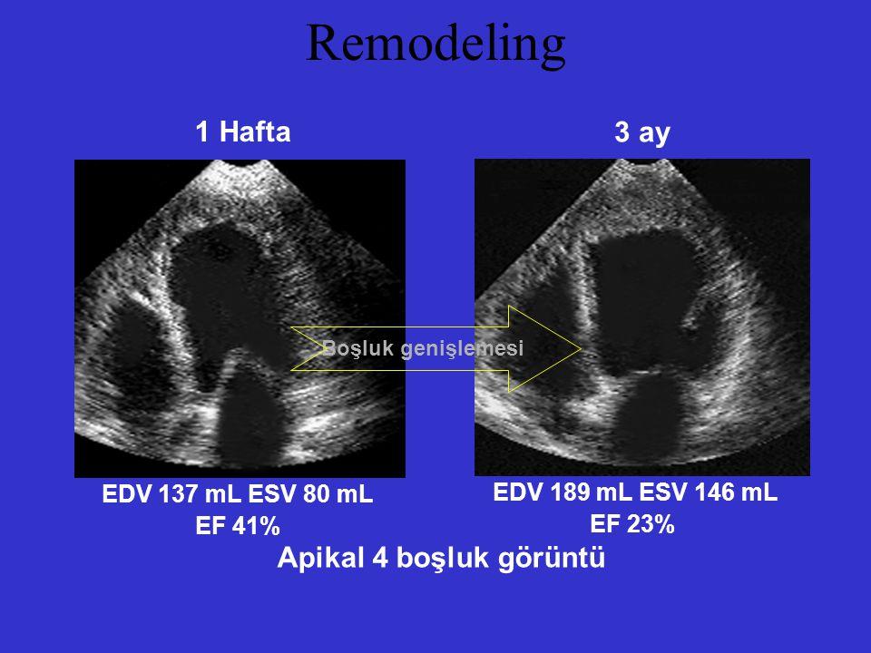Remodeling 1 Hafta 3 ay Apikal 4 boşluk görüntü EDV 137 mL ESV 80 mL