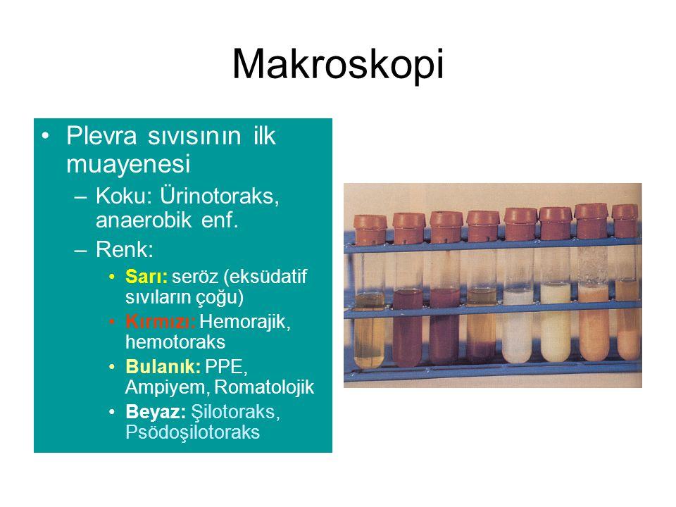 Makroskopi Plevra sıvısının ilk muayenesi