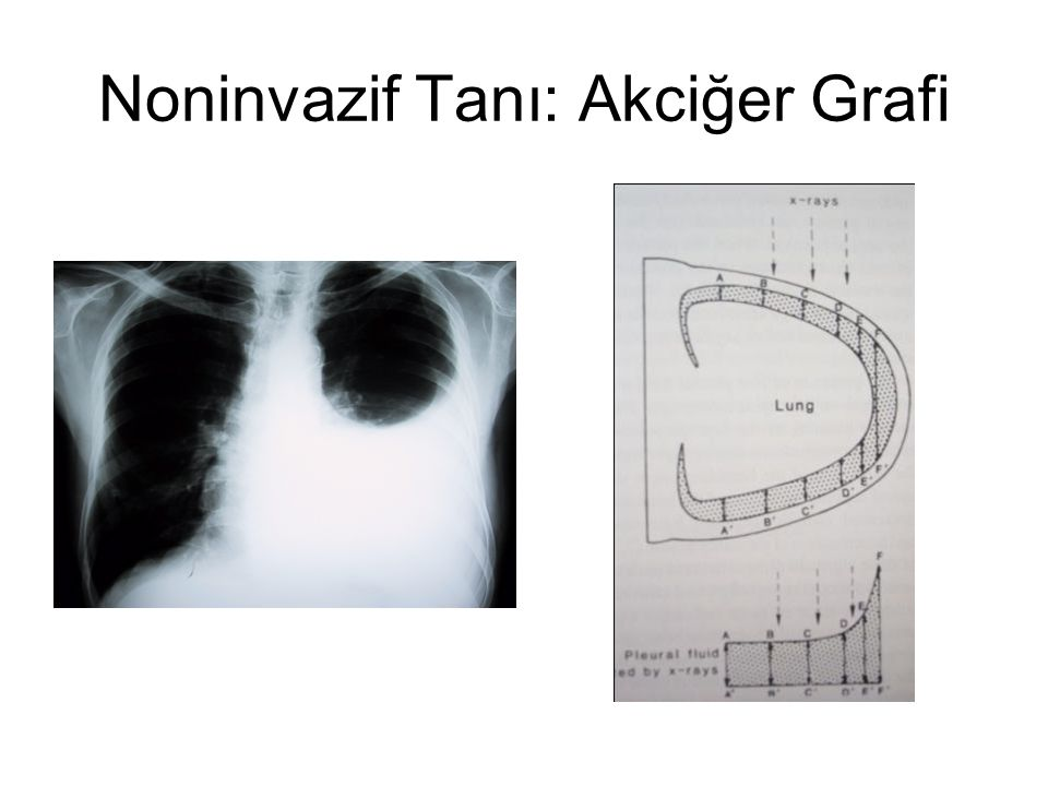 Noninvazif Tanı: Akciğer Grafi