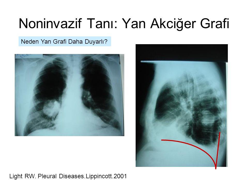 Noninvazif Tanı: Yan Akciğer Grafi